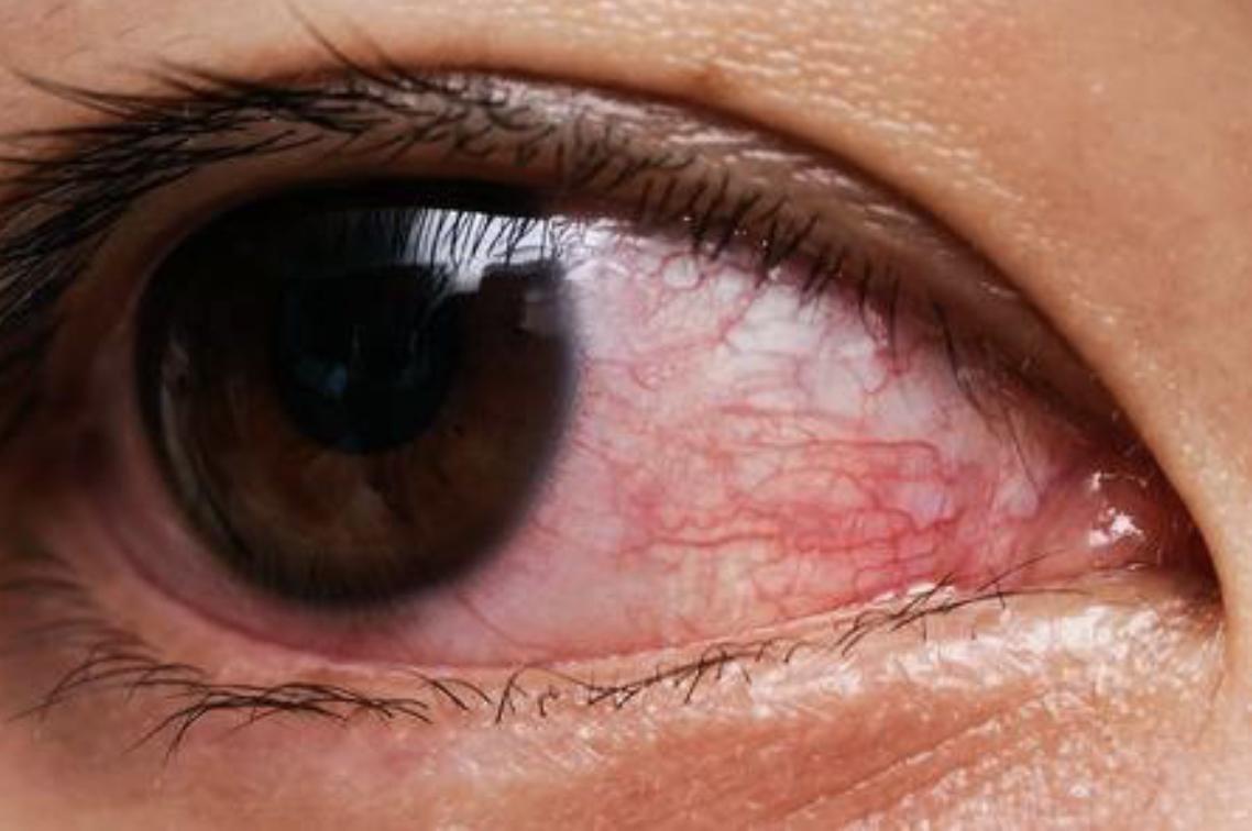 modul în care conjunctivita afectează vederea